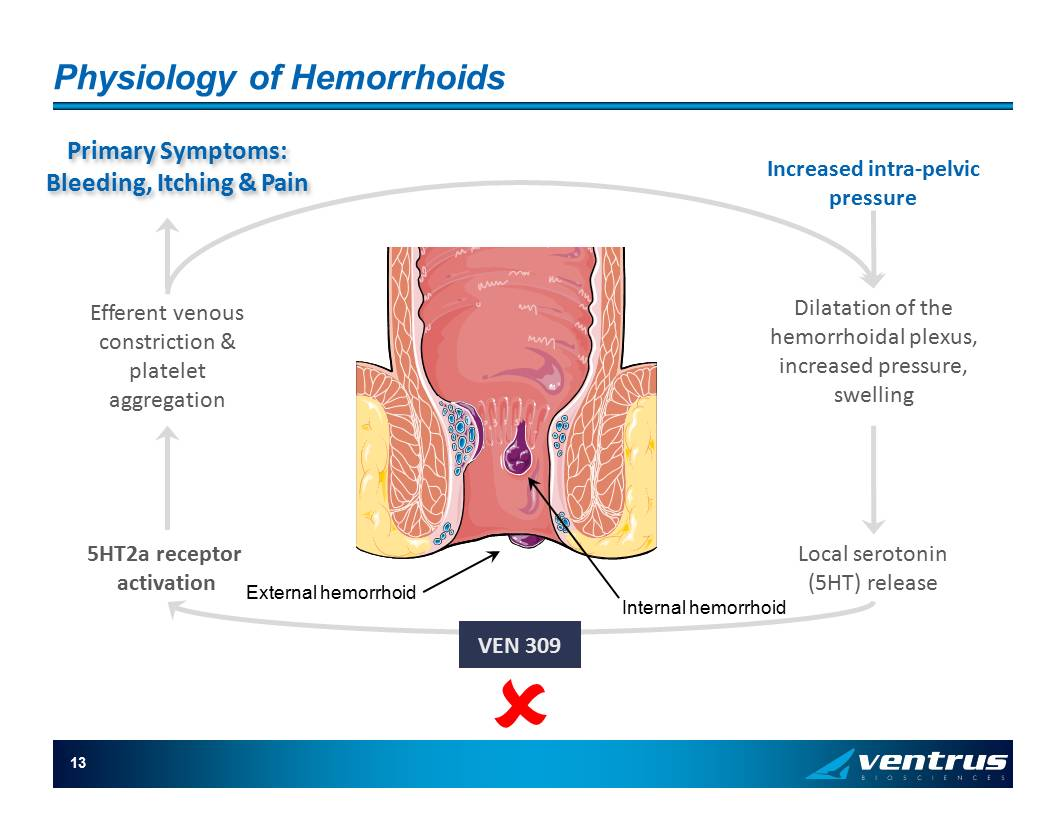 Constriction of the anus with hemorrhoids