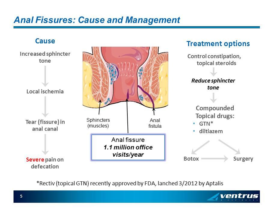 nitroglycerin ointment anal fissure treatment